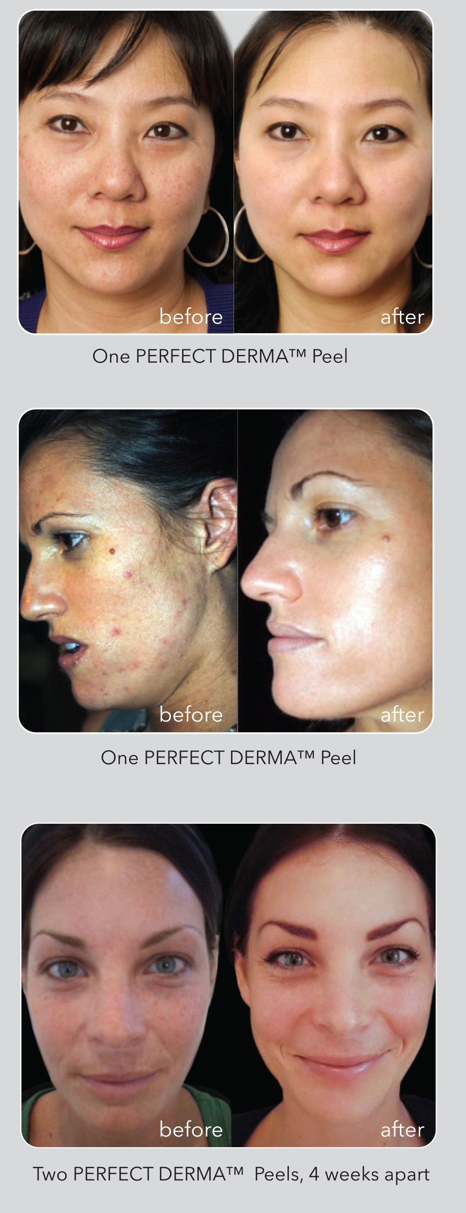 derma-before-after