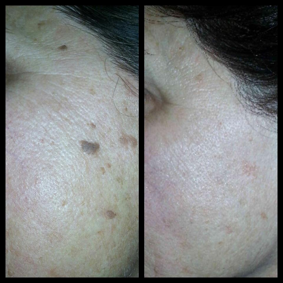 Skin Classic - Star Spa Uptown